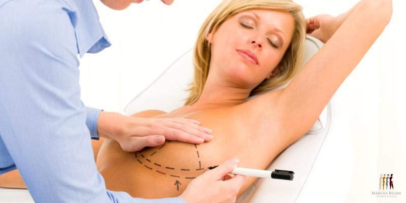 Você conhece os diferentes tipos de cirurgia na mama?