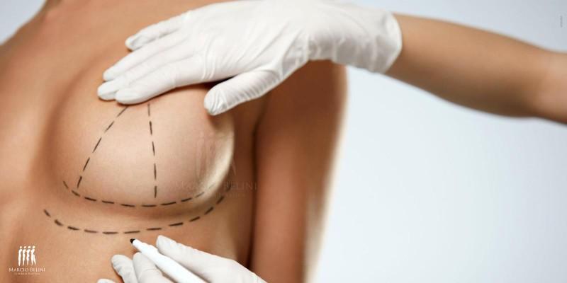 Mastopexia: Conheça a cirurgia para correção dos seios caídos
